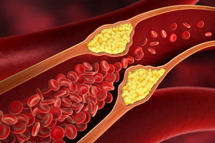 Kolesterol Nedir? Yüksek Kolesterol Belirtileri Nelerdir?