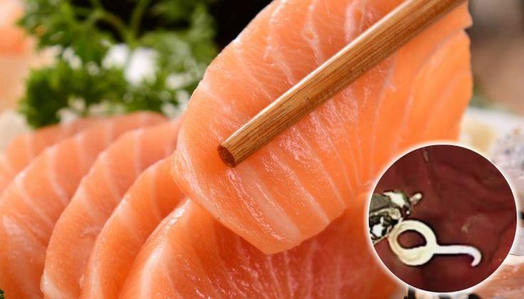 Após comer salmão cru, mulher fica com 11 larvas no estômago: veja vídeo da remoção - Vix