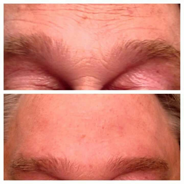 Wrinkles gone in 2 minutes! Go to www.haileybrodie.jeunesseglobal.com to order your instantly ageless!!!