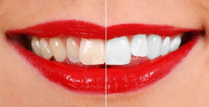Teeth whitening is a method that includes evacuating stains through the teeth which amassed because of constant admission of tea, coffee, merlot, or smoking.