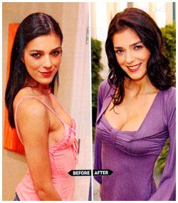 Adrianne Curry Breast Implants before and after