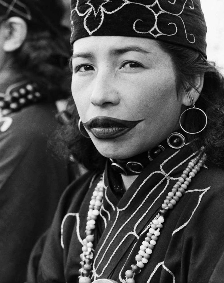 An Ainu woman from northern Japan with tattooed lips, ca. 1960 by Three Lion || The upper lip is slashed during childhood and ashes are rubbed in to leave a scar.