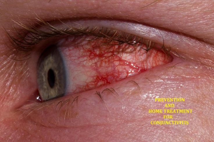 Eye Infection (Conjunctivitis) Home Treatment - http://thetreatmentherbs.com/eye-infection-conjunctivitis-home-treatment/
