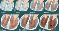 Czy wiesz, że możesz oczyścić swój organizm z toksyn poprzez… stopy? Sama się przekonaj!