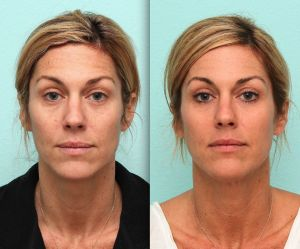 BroadBand Light therapy can help brighten and even skin tone while reversing the signs of aging. Take a look at our latest blog post to find out how BBL treatments keep your skin youthful.