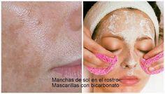 Mascarilla de bicarbonato para quitar las manchas de sol