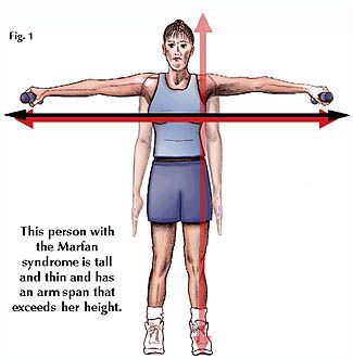 Marfan Syndrome | Definition of « Syndrome, Marfan »