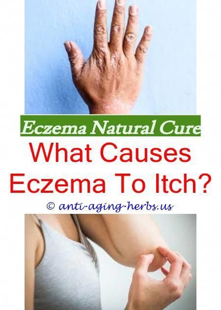 Heat Rash Turns Into Eczema Is Bag Balm Good For How To Treat On Hands And Feet Cure 9996643869 Skineczematreatment