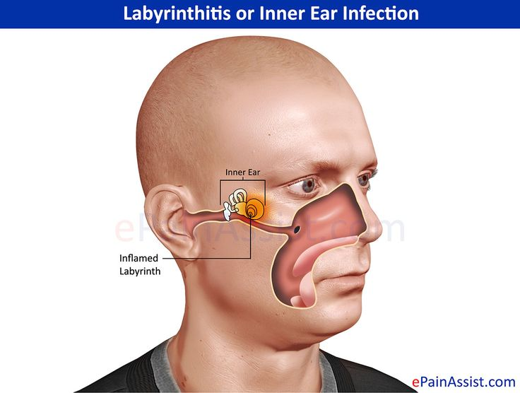 Labyrinthitis Or Inner Ear Infection Yeast Infection Ear Infection Yeast Infection Cure