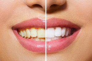 7 Hausmittel für die Gesundheit der Zähne und des Zahnfleisches.