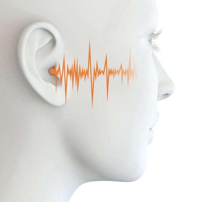 What is white noise?