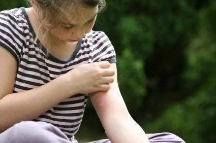 Treat Mosquito Bites