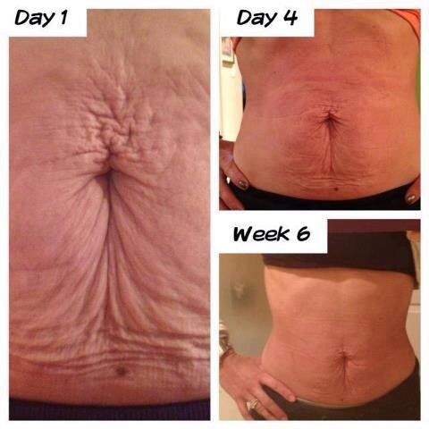Amazing results from the ageLOC Galvanic Body Spa. No needles, no surgery! Curious or want to know more about discounted prices? Feel free to drop me an email at des.desanandres@gmail.com