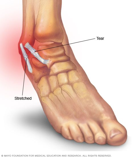 Sprained ankle — Reference guide covers symptoms, treatment for this common ankle injury.