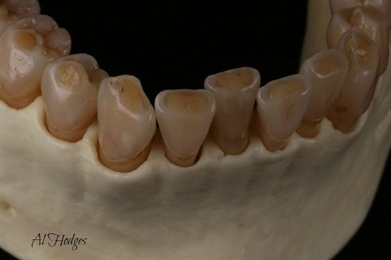 Emax cores layered w/ GC's LiSi by Al Hodges CDT Dentaltown Message Board…