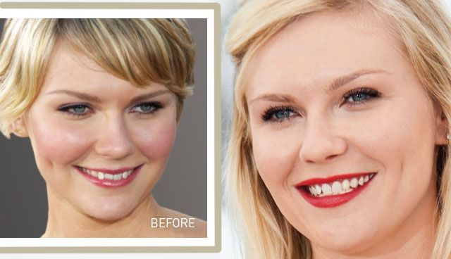 Kirsten Dunst's Smile Makeover: From Crooked to Confident #Invisalign