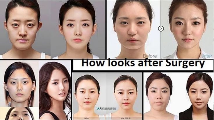 What is Plastic Surgery