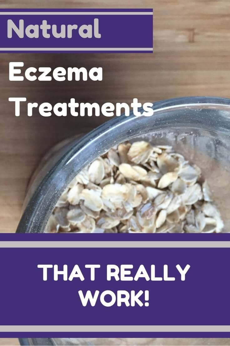 Home remedies for eczema that really work!