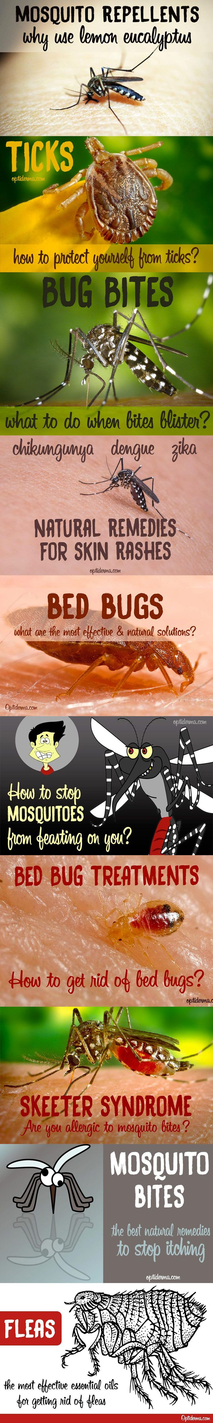 Are you sick of being bitten by mosquitoes? Is your home infested with bed bugs?Have you been bitten by a tick? Are you scared by the diseases mosquitoes and ticks carry?Prevent and treat insect bites with effective natural remedies!Here's a selection of populararticles to help you deal with bug bites: https://www.optiderma.com/topics/insect-bites-mosquito-tick-bedbug/