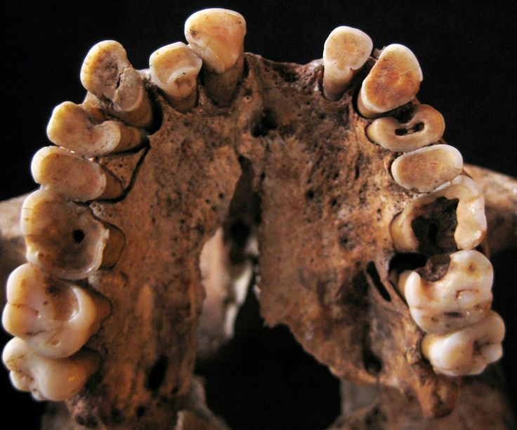 Eating nuts caused tooth decay in hunter-gatherers ~~tko