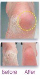 Electric Callus Shaver - Eliminator - Remover Heel Treatment Pedicure Tool Malvern Mfg