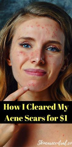 Awesome Secret to Get Rid of Acne Scars on Face. #acnescarshowtogetridof #acnescars http://beautifulclearskin.net/category/no-more-acne/