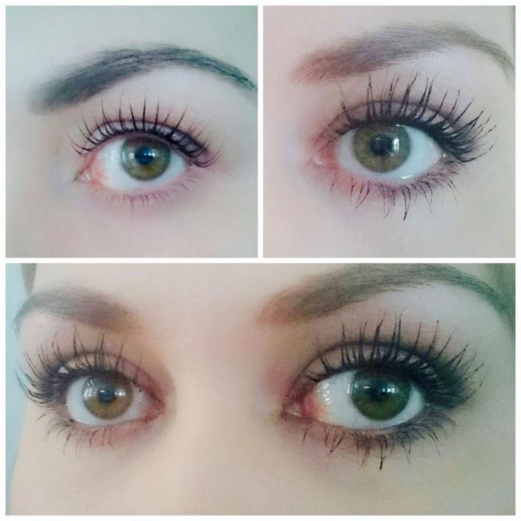 After using Long Lashes serum from iGlow.no