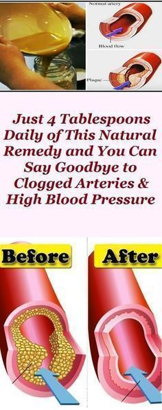 Just 4 Tablespoons Daily of This Natural Remedy and You Can Say Goodbye to Clogged Arteries & High Blood Pressure