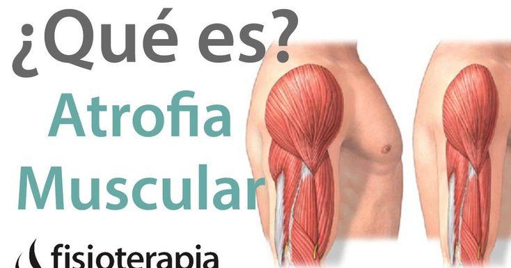 ¿Qué es la atrofia muscular, cuáles son sus causas y tratamiento recomendado?