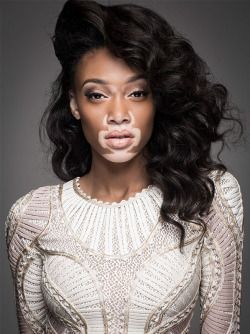 1k photoshoot chantelle brown-young winnie harlow Chantelle Winnie