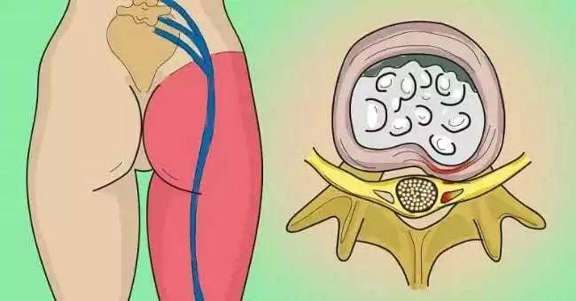 Um exercício simples pra acabar com as dores no nervo ciático e lombar