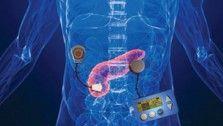 artificial organs Archives - ExtremeTech