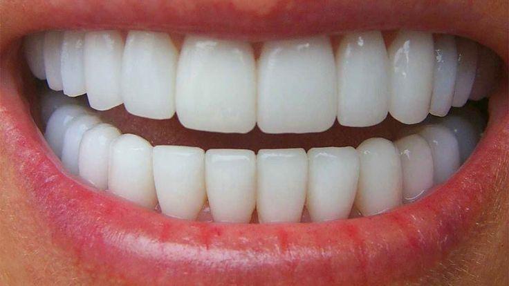 ПРАВДА ОБ ОТБЕЛИВАНИИ СЕКРЕТЫ БЕЛОСНЕЖНОЙ УЛЫБКИ Вам сообщили как отбелить зубы? http://3dwhite.in.net/