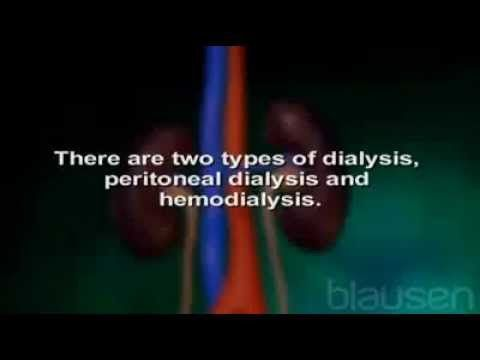 kidney dialysis procedure---- video prof. adu shared in class.