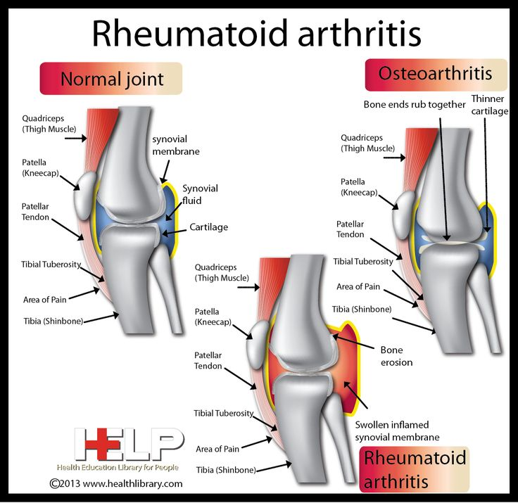 ... In Rheumatoid Arthritis Is There A Loss Of Synovial Fluid Psoriatic Cure