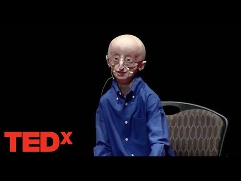 Watch. You'll Never Forget This, Or Sam Berns | Ann Nyberg's Network Connecticut | Let's Start Talking!