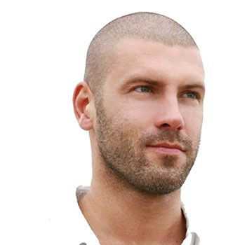 Non-Surgical Hair Loss Treatment option addressing balding ...