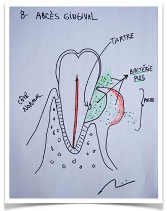 Un abcès dentaire est une infection bactérienne. Il y a deux types : le premier vient de la gencive et le second vient de la nécrose du nerf de la dent.