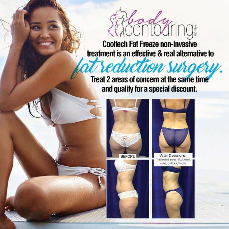 Cooltech Fat Freeze non-invasive treatment is an effective and real alternative to fat reduction surgery. Treat 2 areas of concern at the same time and qualify for a special discount. For more information or bookings contact hello@drgys.com #Contouring