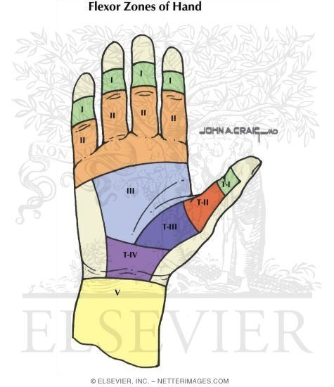 Flexor Tendon Injury Zones   Occupational Therapy   Pinterest