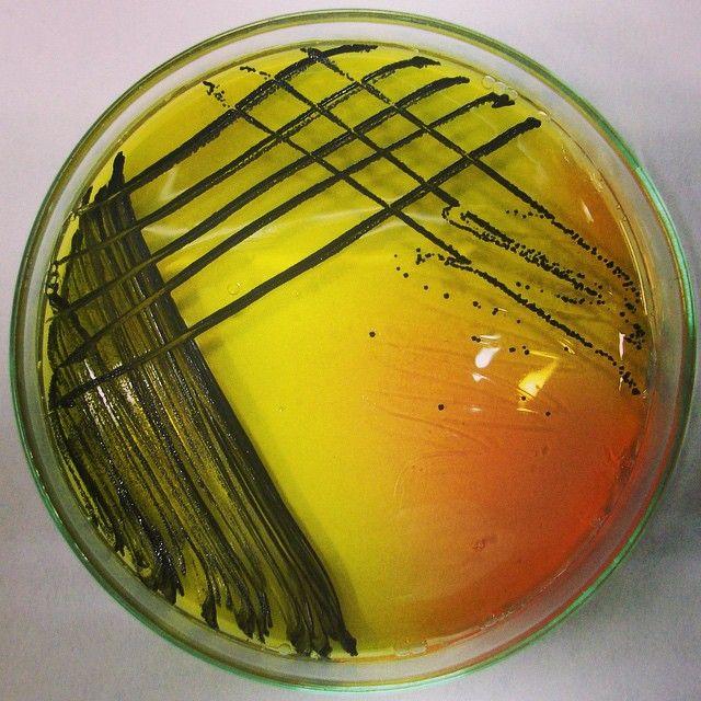 △ Staphylococcus aureus + Mannitol Salt Agar #Microbiology