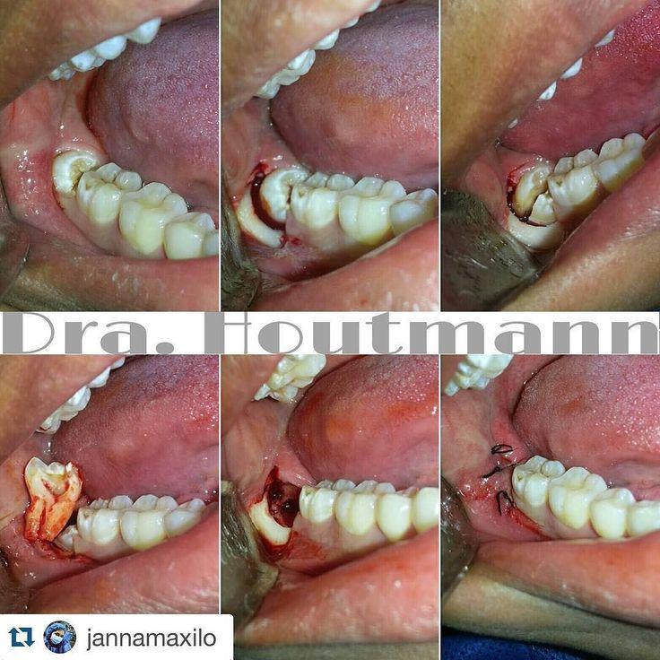 #Repost @jannamaxilo with @repostapp.  Extracción de tercer molar retenido  . Impacted third molar extraction  . Extração do terceiro molar retido  . #CBMF #OMS #IAOMS #Maxilofacial #Cirugia #odontologia #dentistry #teeth #doubletap #OMFS #selfie #love #science #Repost #lifestyle #Popular #PicOfTheDay #follow #CirugiaBucal #CirugiaOral #OralSurgery #WisdomTooth #Cordales #TercerosMolares #estudiantesdeodontologia #extraccion #usa #brasil #anatomy #dentalcases by dentalcases Our Oral Surgery…