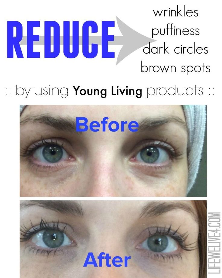 the BEST wrinkle cream and eye cream by YOUNG LIVING. Non toxic beauty products. Reduced my wrinkles, dark circles, puffiness, and brown spots fast!