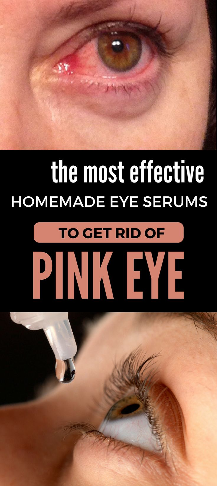 Another hour!THE MOST EFFECTIVE HOMEMADE EYE SERUMS TO GET RID OF PINK EYE