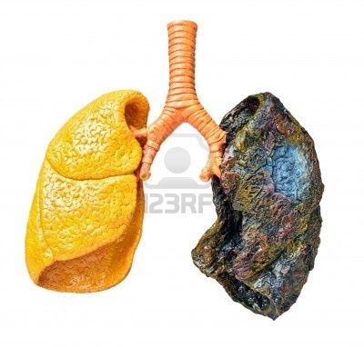What is Lung Cancer? What Causes Lung Cancer?