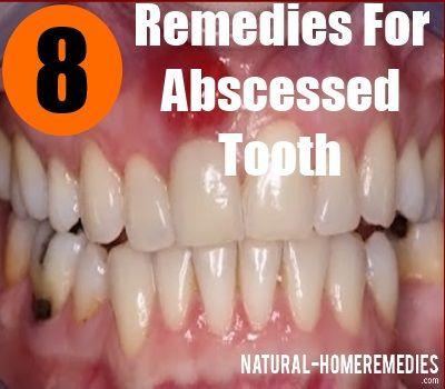 Natural Remedies For Gum Disease Pinterest