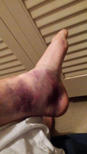 Ankle Sprain .jpeg