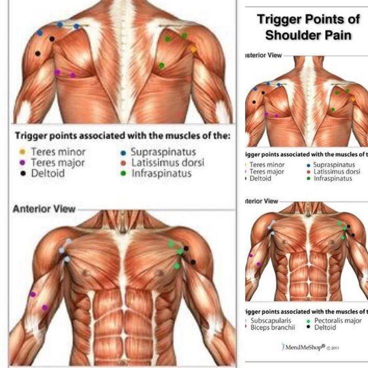 肩のトリガーポイント Trigger point of shoulder pain  肩凝りで痛みが出るときはレントゲンやMRIで分かる五十肩四十肩(肩関節周囲炎)の急性期とかの炎症期電気の通るような激しい椎間板ヘルニアなどで異常がみられないはほとんどは筋骨格系の問題で多くはトリガーポイントという関連痛を伴います  ボディビルディングやボディメイキングなど激しいトレーニングで筋肉を使うと筋肉がこわばるので定期的なメンテナンスが大切です早めのメンテナンスは予後回復早く理想のゴールに近道です  #trigerpoint  #pain  #肩凝り #トリガーポイント #マッサージ #カイロプラクティック #関連痛 #筋肉 #メンテナンス #コンディショニング #痺れ #筋骨格系 #痛み #トレーニング