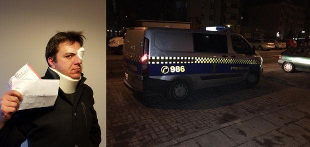 Paweł Surgiel twierdzi, że został brutalnie pobity przez dwóch strażników miejskich. Jego relacja ze zdarzenia i materiały, które przedstawił są wstrząsające. O komentarz poprosiliśmy straż miejską i policję. - Sprawa jest badana. Trwa też wewnętrzne dochodzenie w warszawskiej straży miejskiej - potwierdzają funkcjonariusze.