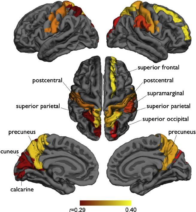 Fig. 3. Network ef fi ciency and the length of gestation at local regions. Strong positive associations were found in the bilateral precuneus, superior parietal, and postcentral regions including cuneus, supramarginal, calcarine, superior frontal and occipital regions ( p b 10 − 4 with Bonferroni correction; age and sex covariates).